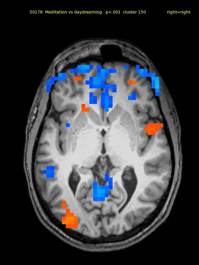 24 yo m novice. Activations: bilateral superior parietal, & lateral front., right inferior front., right insula, & left temporal cortex. Deactivations: bilateral medial front. & ant., post. cingulate.