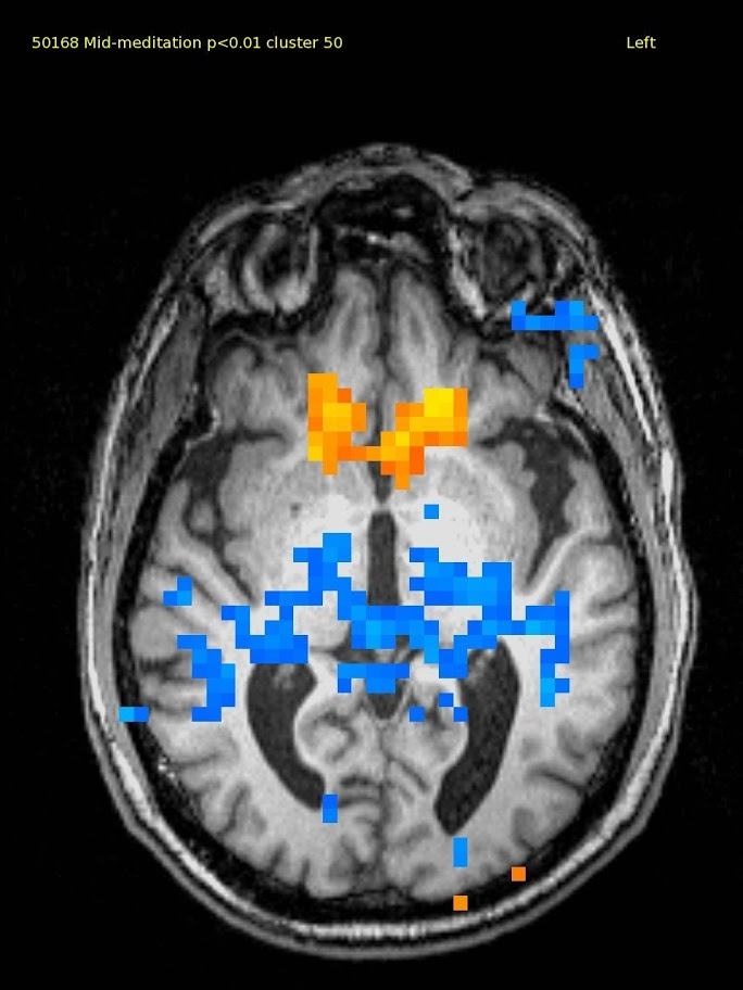 61 yr old male, experienced TM meditator since 1971. This axial slice shows activation in the ventral medial prefrontal cortex and deactivation in the thalamus and adjacent areas.