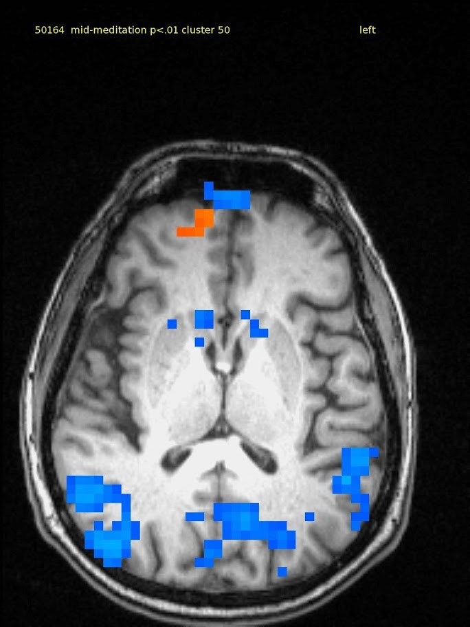 64 yr old male, experienced TM meditator since 1970.  Axial slice shows a small amount of activation in medial frontal lobe and deactivation in bilateral parietal and post cingulate cortex