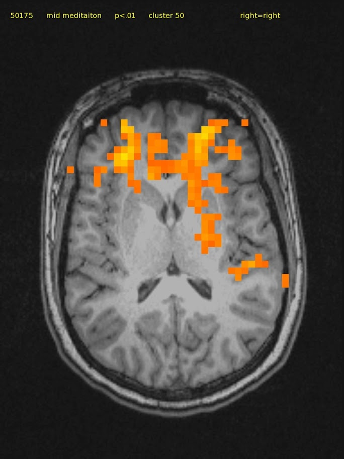 23 yr/o female, novice.  TM Meditator since April 2008. Axial slice shows bilateral frontal, right thalamic, and posterior insula activation