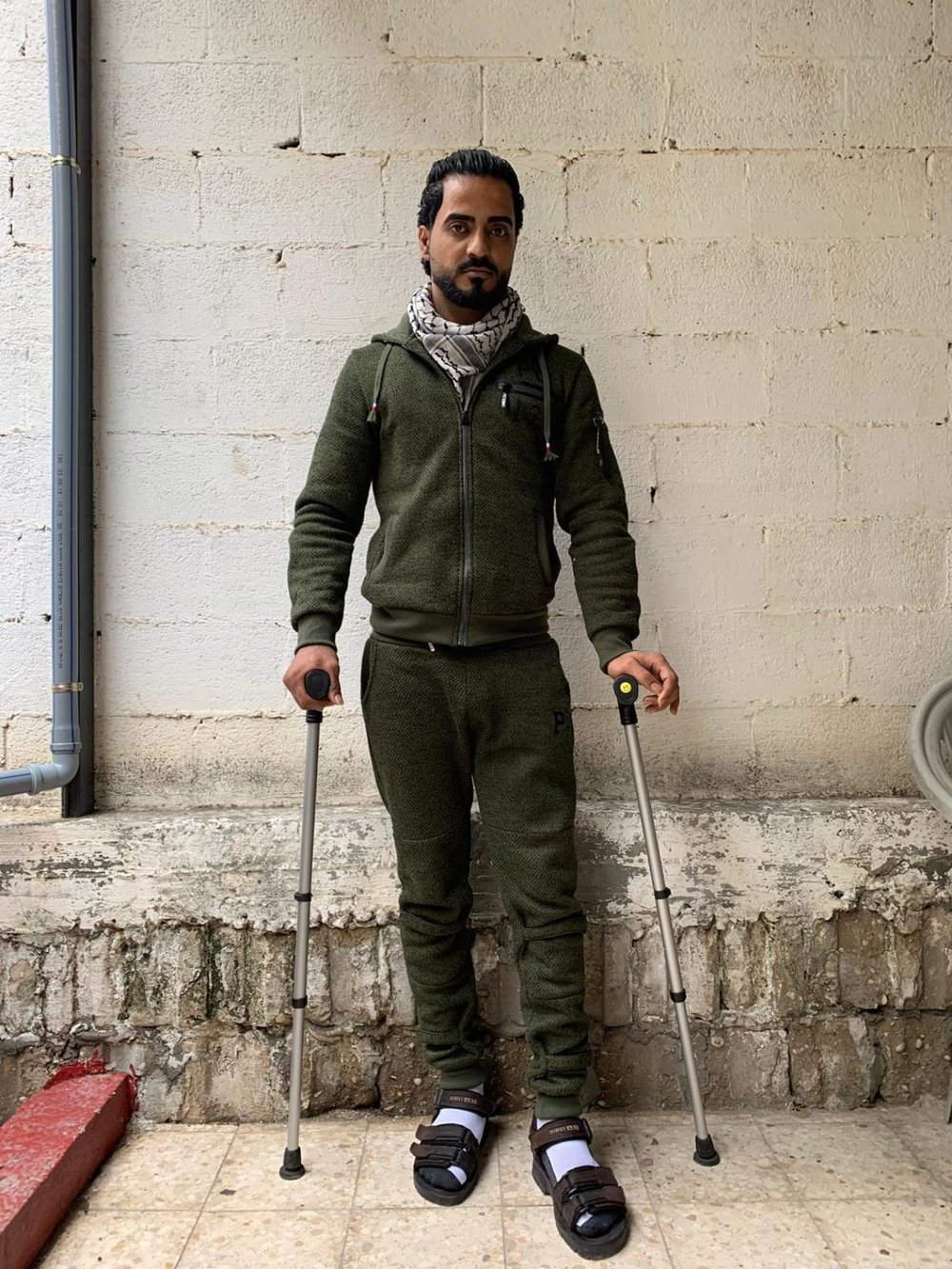 Fahed Zuhud, 29, has a bone infection resistant to antibiotics Above image and header image provided by Médecins Sans Frontières