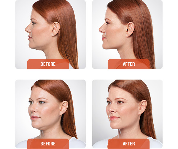 kybella-before-after.jpg