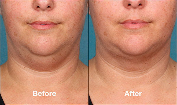 kybella-before-and-after-03.jpg