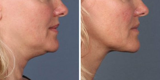 kybella-treatments-mi-before-after-02.jpg