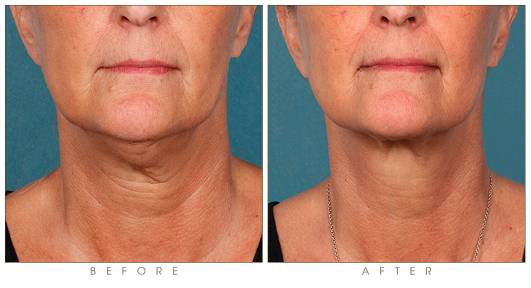 synergy_before-after-kybella-double-chin-treatment-1b.jpg