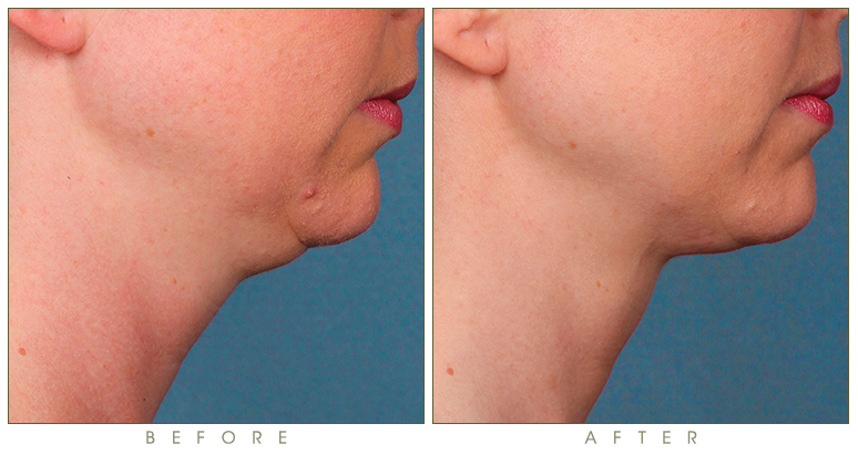 synergy_before-after-kybella-double-chin-treatment-2a.jpg