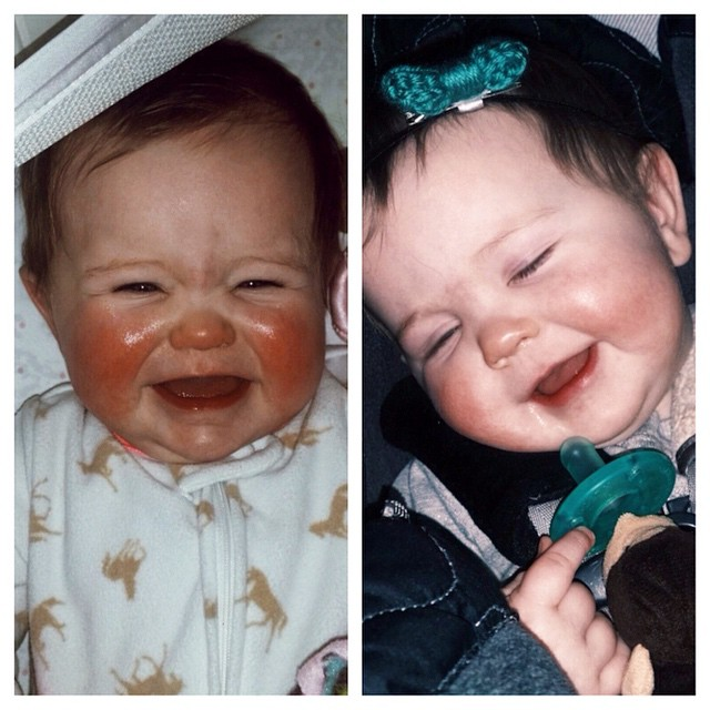 """Last night my baby's cheeks were super red and chapped. I had put lotion on while we were out and about but it wasn't doing anything. So right before I put her down I put   Mom's Stuff   Salve on them. The second picture is this morning right before we left for daycare so I had only used it once last night. Salve magic for my little girls cheeks! They are so much better this morning! I'm a believer!"" -Elise, UT"