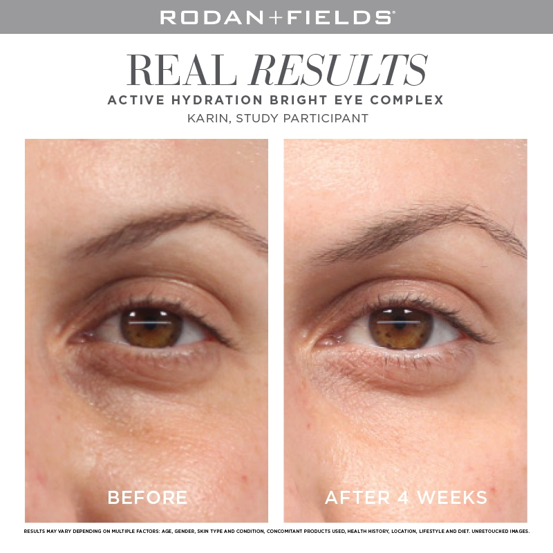 Rodan + Fields Bright Eye Complex