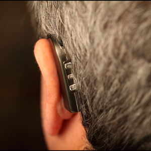 Wearing hearing aids corrects hearing loss as well as a common underlying cause of tinnitus