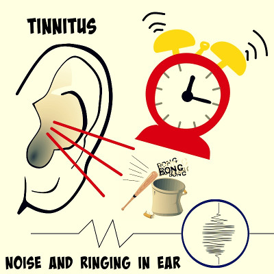 tinnitus ringing or whistling noise in ears quadio