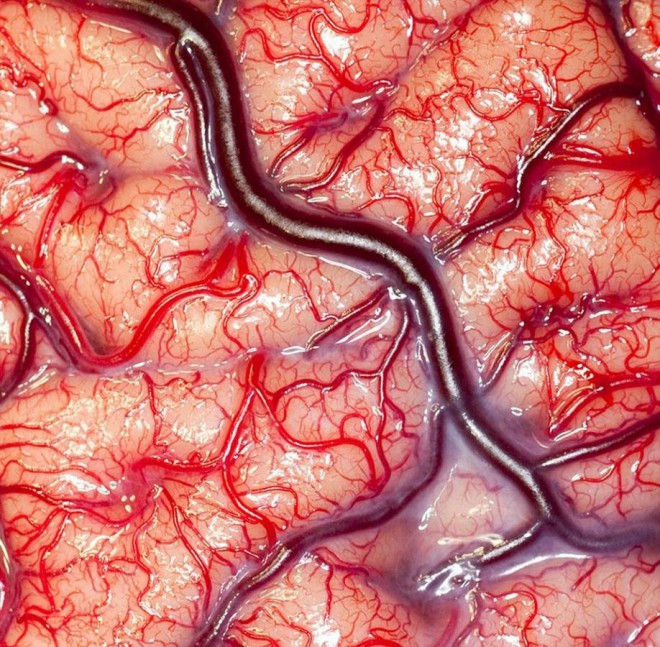 25-amazing-photo-living-human-brain.preview.jpg