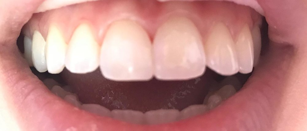 Reshaped Tooth w/ Composite Resin