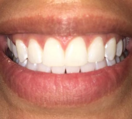 After 2 weeks {KOR} Teeth Whitening