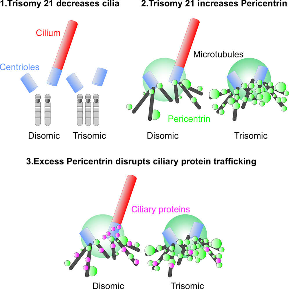 Graphical overview of how trisomy 21 disrupts cilia formation and function.