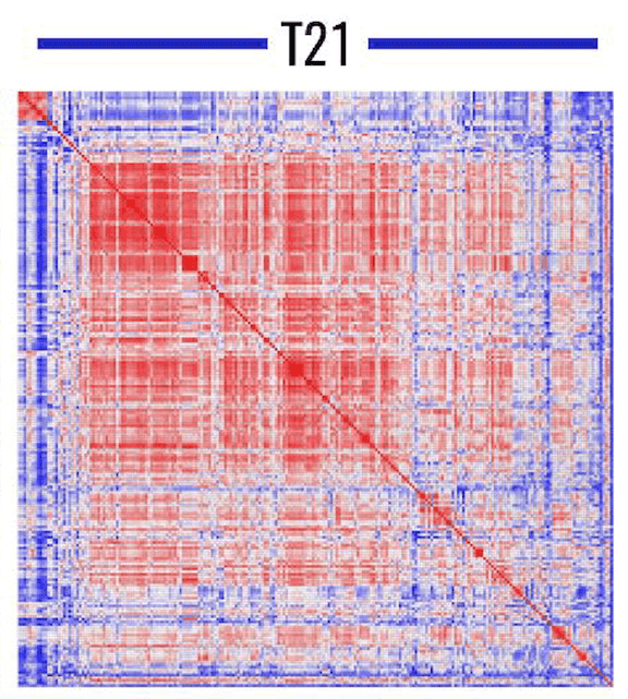 Heatmap showing correlations between metabolites in trisomy 21 red blood cells (blue to red indicates correlations of -1 to 1, respectively).
