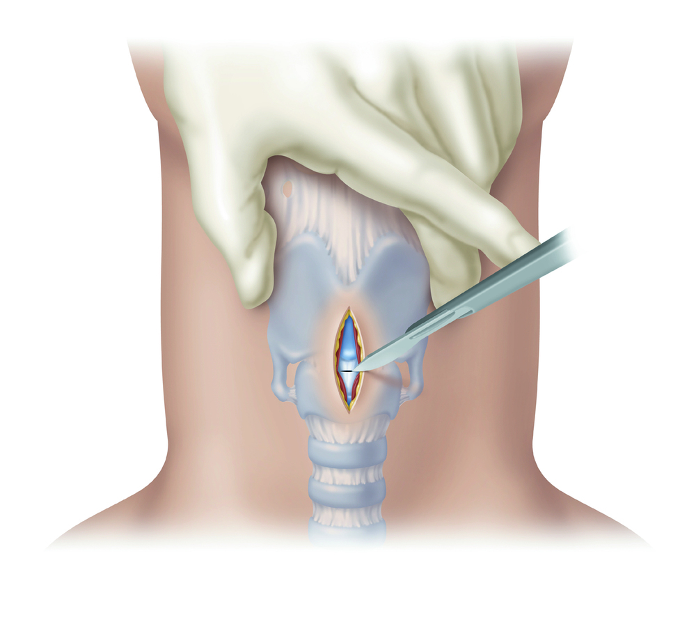 Cricothyrotomy