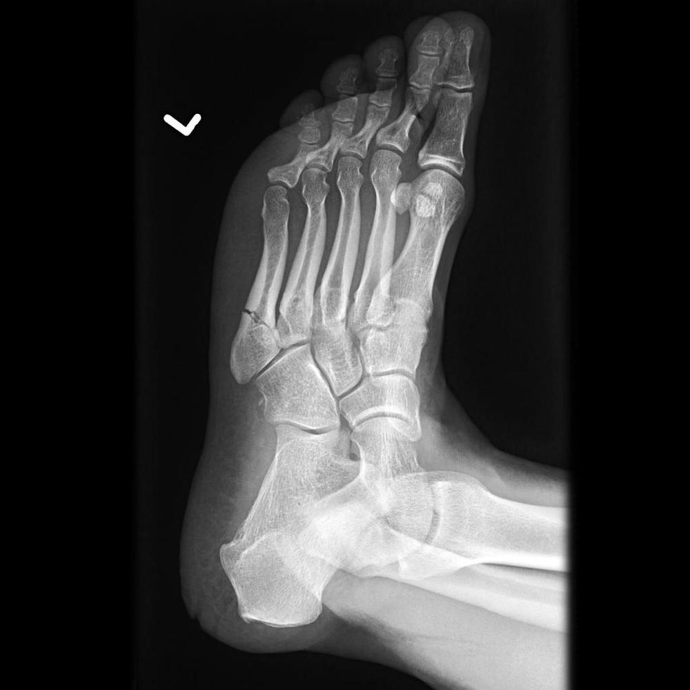 jones-fracture-4.jpg