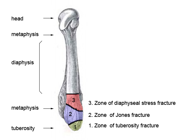 Figure 2: 5th metatarsal anatomy