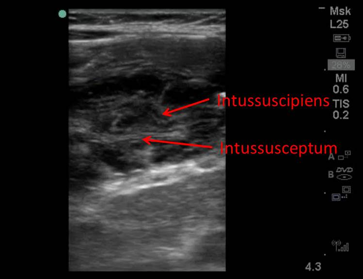Figure 2b: Longitudinal view of the intussusception