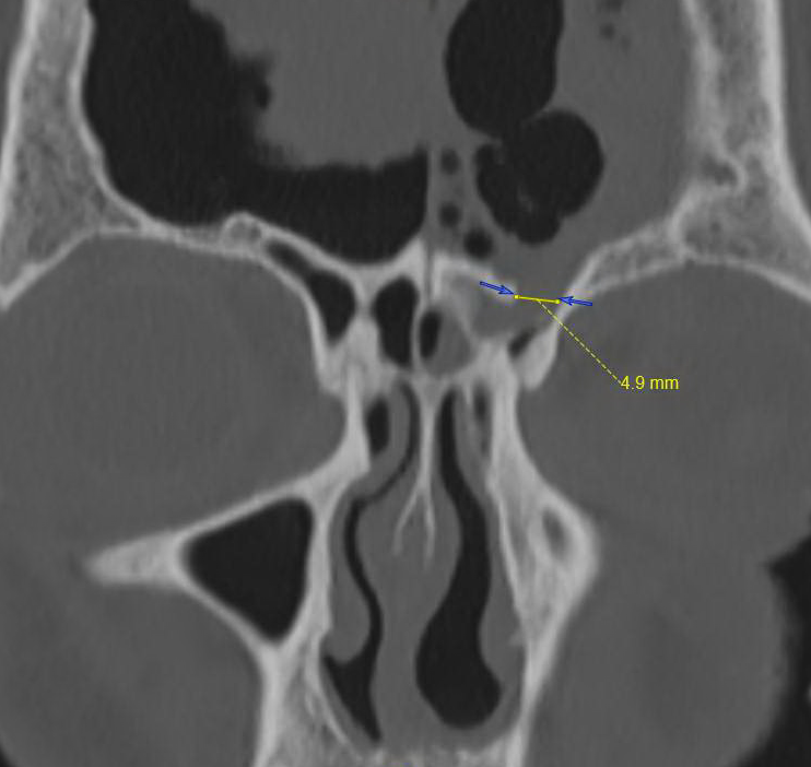 Figure 2: Ethmoid Sinus Fracture