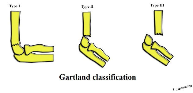Figure 4: Gartland classification for supracondylar fractures.  Courtesy of Benoudina Samir, radiopaedia.org, rID 39938.