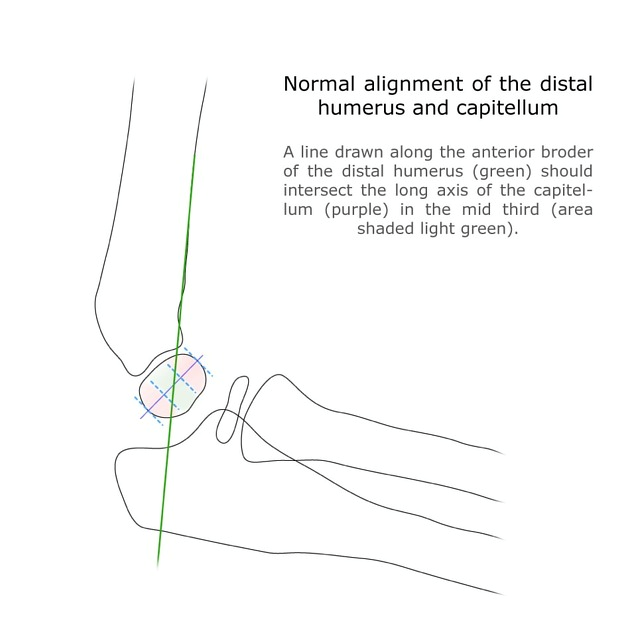 Figure 5: Normal alignment of the anterior humeral line and the middle third of the capitellum. Courtesy of A. Prof Frank Gaillard, radiopaedia.org, rID 10343.