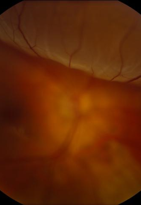 Figure 2: Retinal detachment as seen on ophthalmoscopic exam. Borrowed from http://emedicine.medscape.com/article/798501-overview
