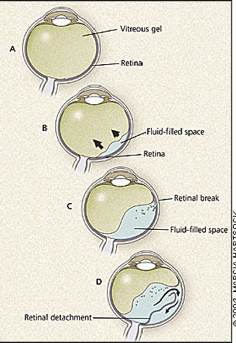 Figure 4: Anatomic depiction of retinal detachment. Borrowed from  http://www.aafp.org/afp/2004/0401/p1691.html