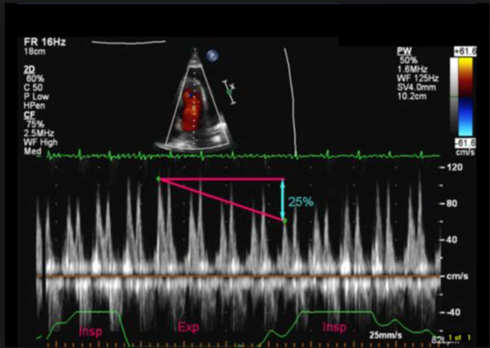 Image 1: Evaluating for pulsus paradoxus on bedside cardiac echo.