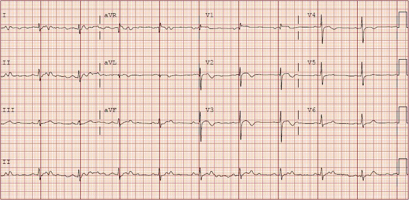 Image 2: EKG