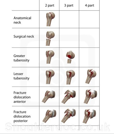 Image 4: Neer's Classification of humerus fractures. Figure created by https://www.shoulderdoc.co.uk/article/1457