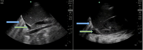 Figure 1: Right and left upper quadrant views of abdomen, respectively, demonstrating bilateral pleural effusions (green arrows) and B-lines (blue arrows).