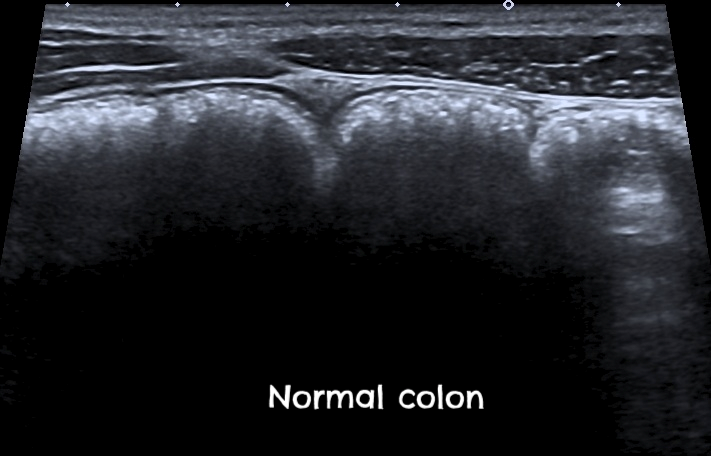 Figure 1: Normal colon. Photo source:  http://bowel-ultrasound.org/images.html
