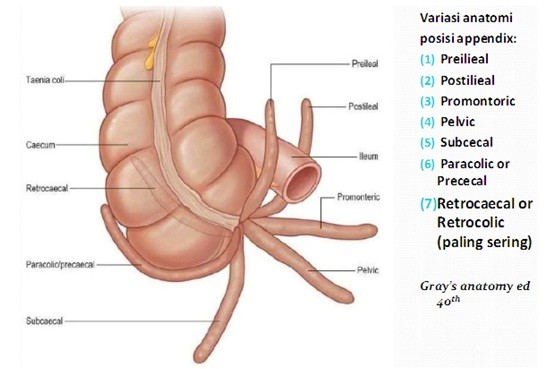 Figure 7: Photo source: http://cephalicvein.com/wp-content/uploads/2016/08/appendix-location-dr-herry-setya-yudhautama-spb-finacs-mhkes-ics-digestive.jpg