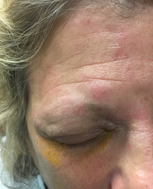 Image 1: Rash appreciated above the right eye.