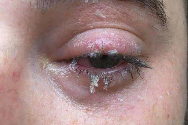 Super Glued Shut — Brown Emergency Medicine