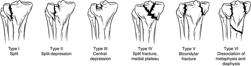Figure 4:Schatzker Classification of Tibial Plateau Fractures. (Image from Zeltser et al, Classifications in Brief: Schatzker classification of tibial plateau fractures, Clinical Orthopedics and Related Research, 2013 Feb)