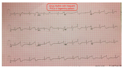 This was the prehospital EKG