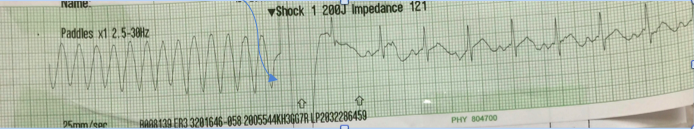 Blue arrow indicates defibrillation; return of NSR afterward