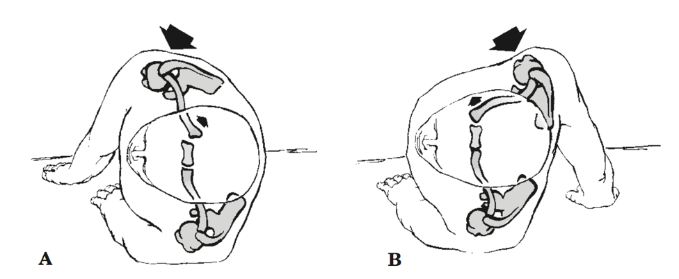A - A posterior SCJ dislocation caused by a force applied to the posterolateral aspect of the shoulder.  B - An anterior SCJ dislocation caused by a force applied to the anterolateral aspect of the shoulder.