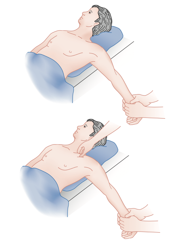 The most common reduction technique involves placing towels between the patient's shoulder blades. Then, traction is applied to the affected arm while holding it in abduction (90 degrees) and extension (15 degrees). An assistant may be required to apply manual pressure to the medial aspect of the clavicle to facilitate reduction of an anterior dislocation. Similarly, an assistant may use a towel clip to percutaneously grasp a posteriorly dislocated clavicle and apply forward traction.