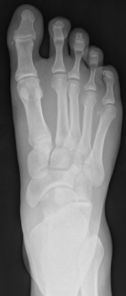 Image 3: Radiograph demonstrating widening between the first and second metatarsals (Click to expand)