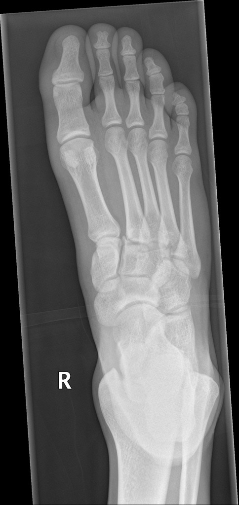 "Image 5: Radiograph demonstrating the ""fleck sign."" Indicative of an avulsion fracture of the base of the second metatarsal (Click to expand)"