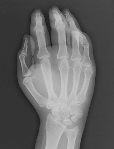 Figure 2. Plain radiograph of the hand.