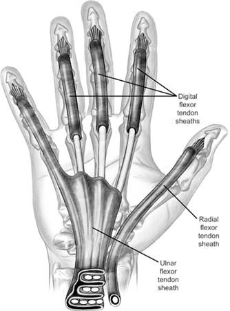 Figure 3. Flexor tendon sheaths of the hand.    Courtesy of  Orthobullets