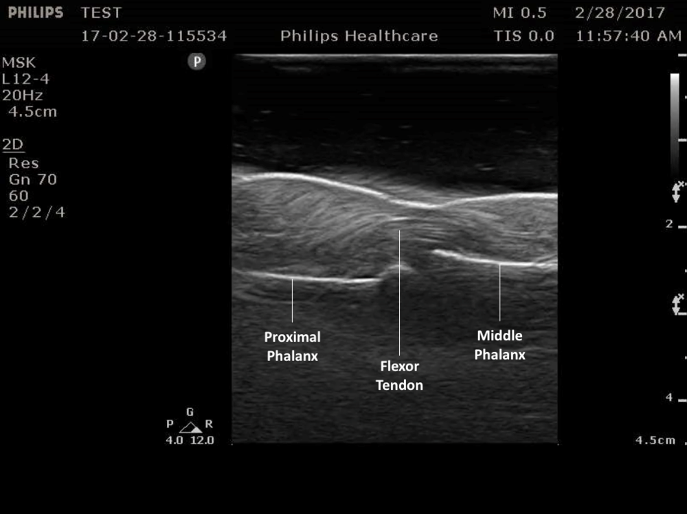 Figure 5.   Normal flexor tendon anatomy on ultrasound.