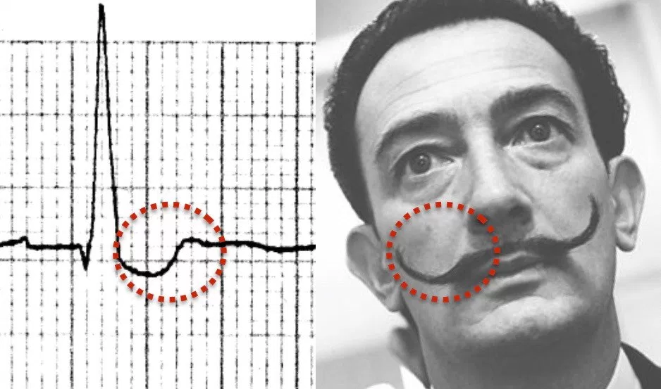 Image caption: Life in the Fast Lane: Digoxin Effect. https://i0.wp.com/lifeinthefastlane.com/wp-content/uploads/2012/01/Digoxin-reverse-tick-salvador-dali-moustache.jpg?ssl=1