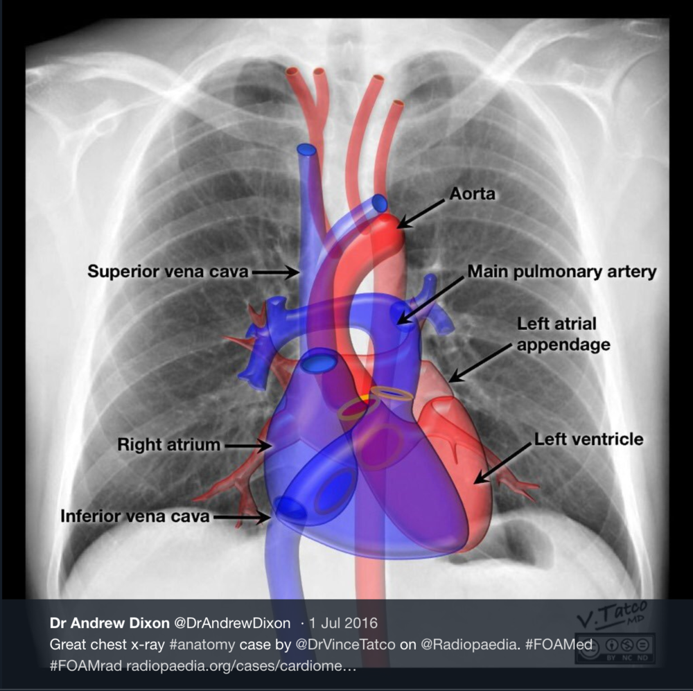 Hiding in Plain Sight: Unexpected Findings on Chest X-Ray — Brown ...