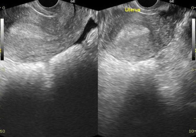Figure 2: Fluid appreciated in the cul-de-sac posterior to the uterus. Source: Radiopaedia.org