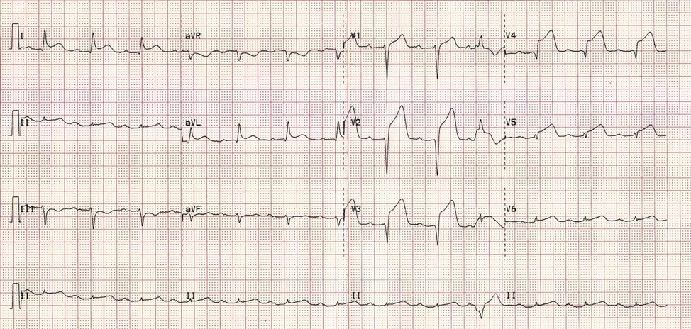 Figure 1: The patient's presenting EKG.